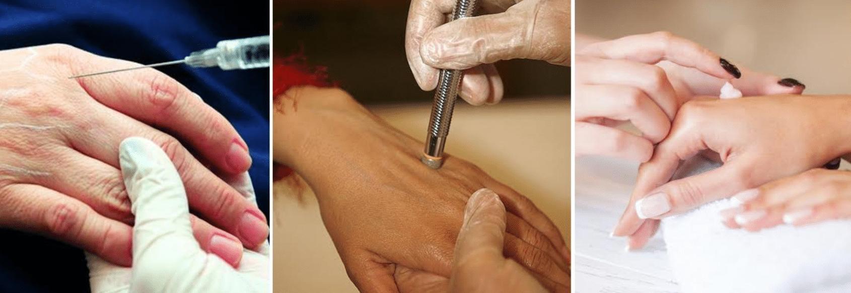 imagens de mulheres realizando procedimentos em suas mãos para evitar o envelhecimento